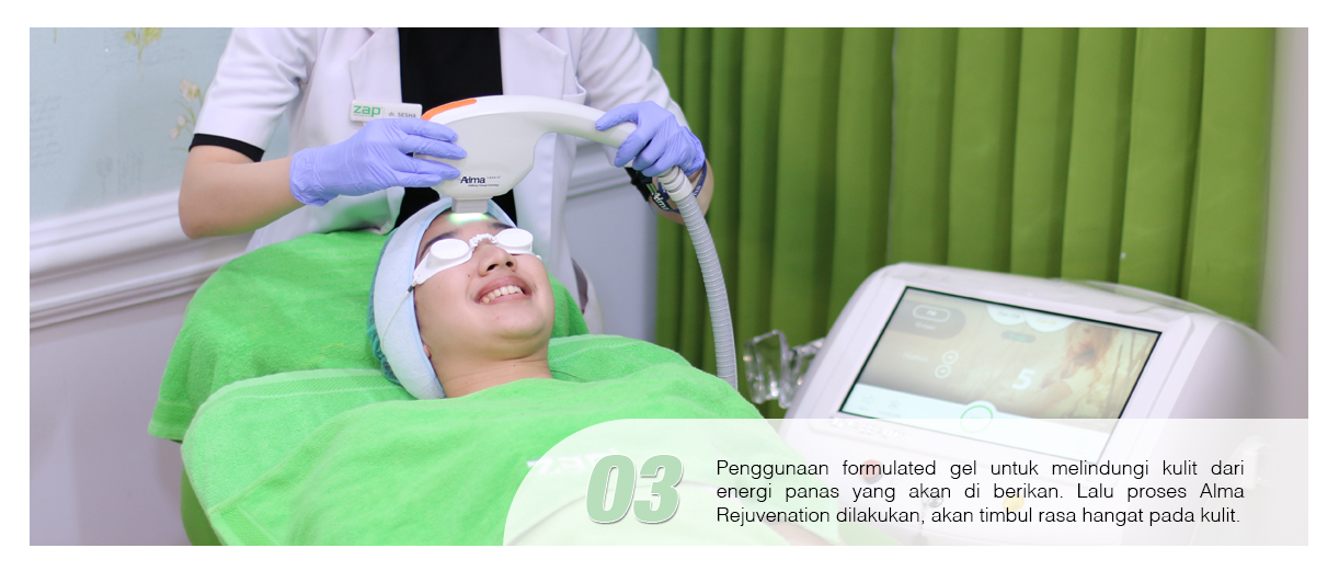 Langkah ketiga treatement Photo Facial