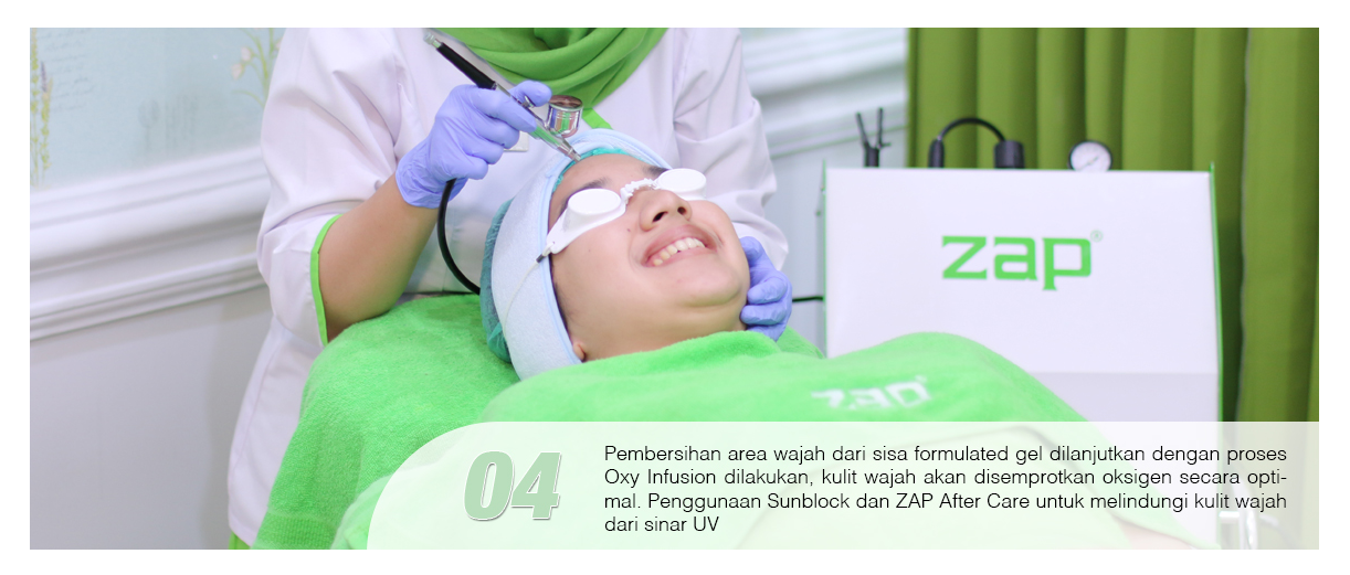 Langkah keempat treatement Photo Facial