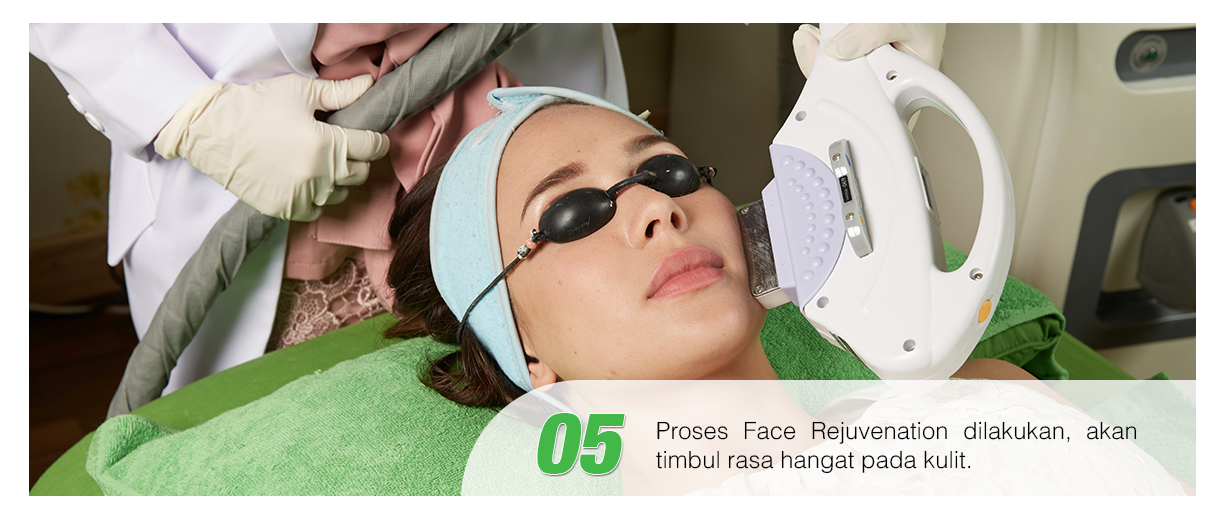 Langkah kelima treatement Photo Facial