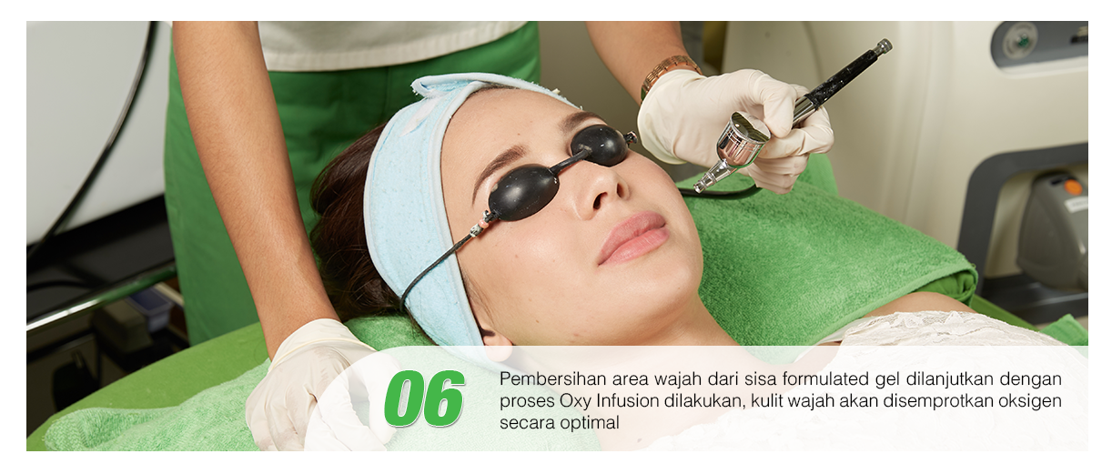 Langkah keenam treatement Photo Facial