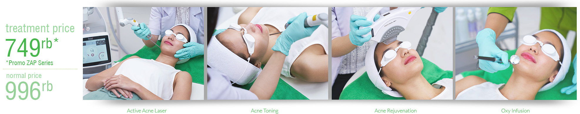 Harga Treatement Photofacial Acne