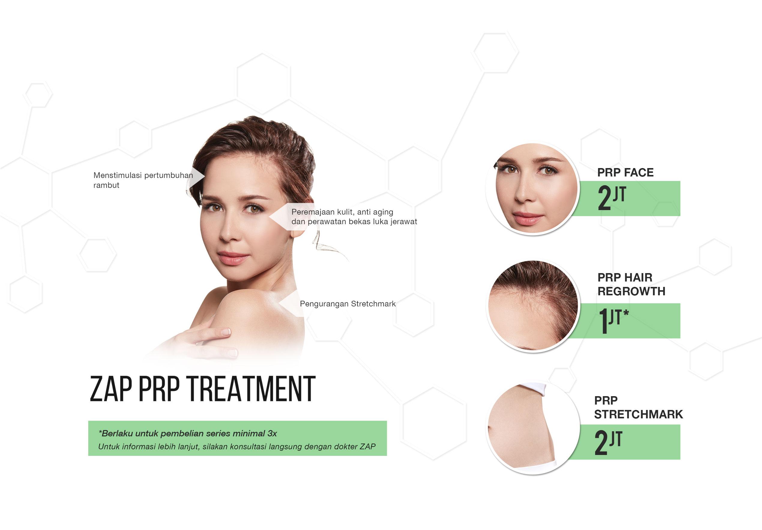 zap-prp-pricelist